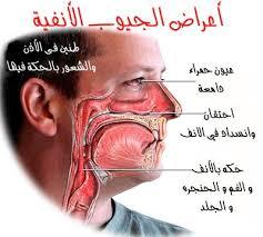تعرف على طرق علاج انسداد الأنف بشكل فعال وسريع